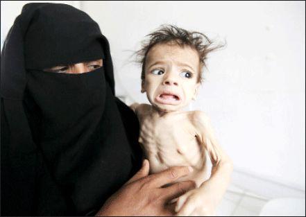 تسلیحات سعودی و فاجعه یمن