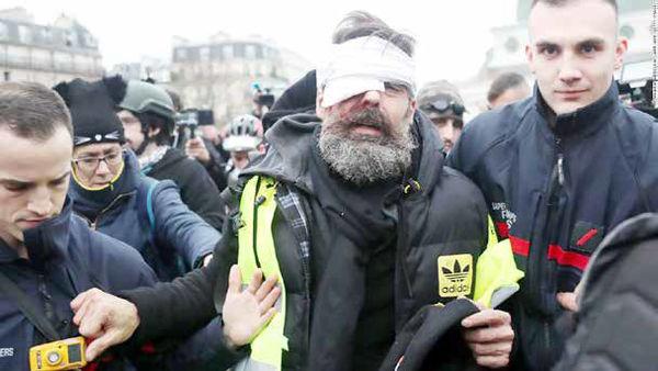 هدف؛ چشم معترضان یا قلب دمکراسی؟